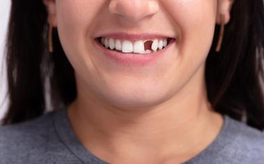Ez történik, ha nem pótlod a hiányzó fogaidat